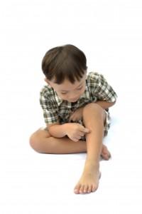 Boy psoriasis